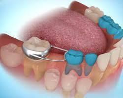 Pedodonti Çocuk Diş Hekimliği